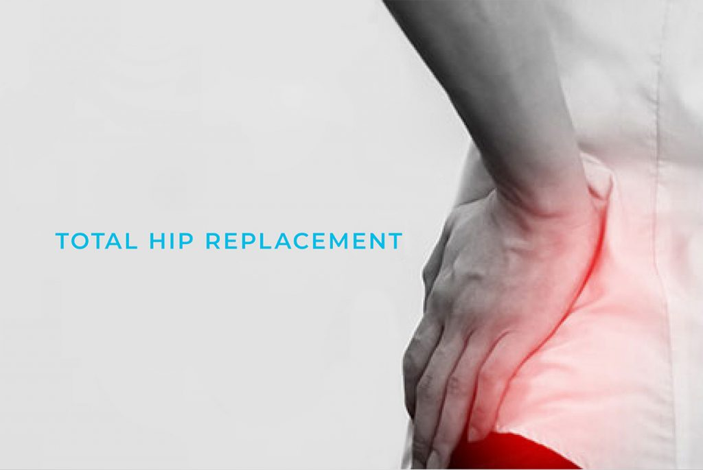 Best Hospitals Hip for Replacements