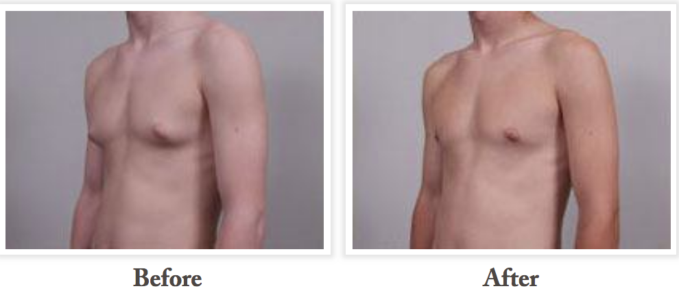 gynecomastia treatment cost
