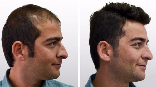 Best Hair Transplant Treatment Islamabad