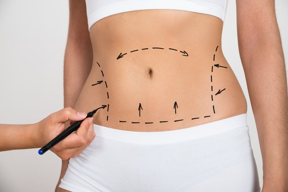 Liposuction Montreal